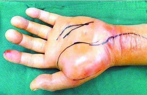 专家提醒鱼刺扎伤手莫大意