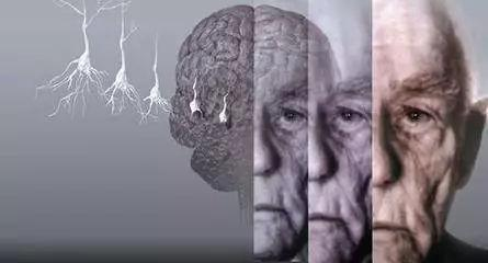 新研究揭示阿尔茨海默病患者脑细胞变化