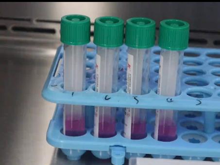 瑞士罗氏公司推出新冠和流感同时检测试剂